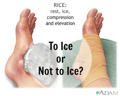 To Ice or Not to Ice?