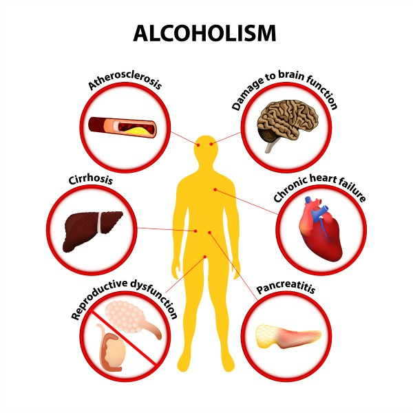 health effects of alcoholism infographic