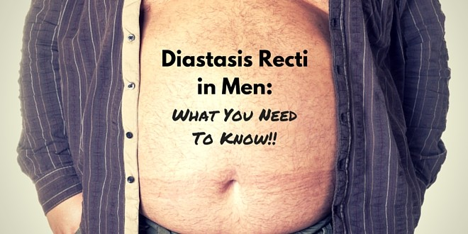 Diastasis Recti What You Need To Know