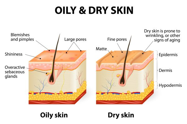 Dry And Flaky Skin Why It S Essential To Moisturize This