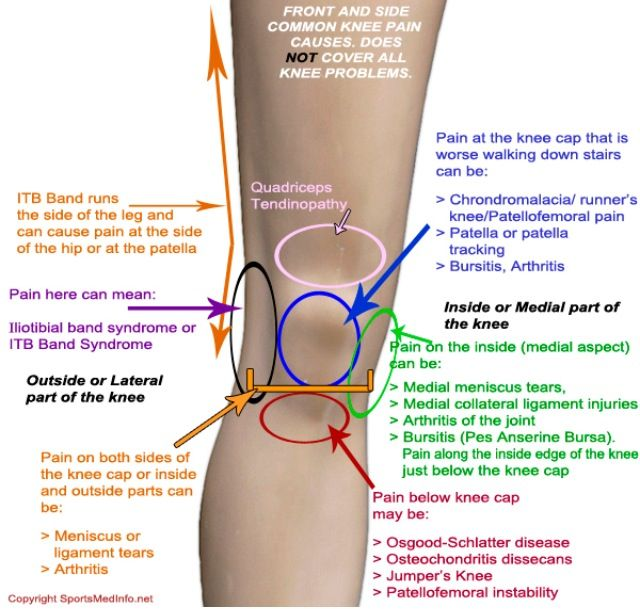The Common Cause of Running Injuries Most People Overlook picture