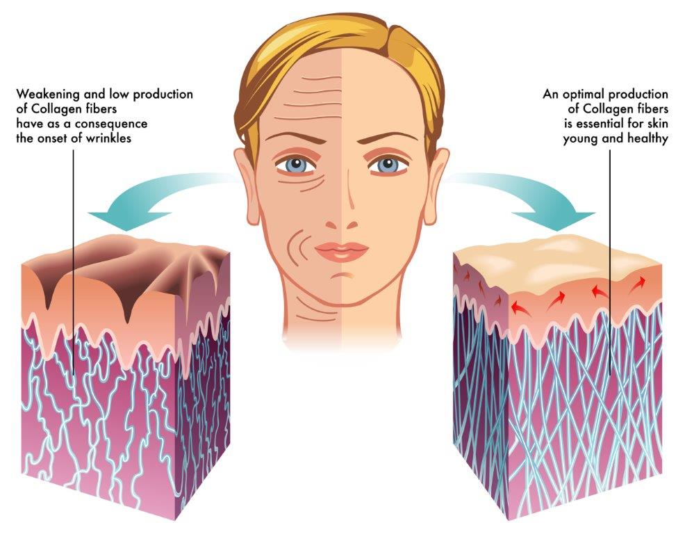 how to get rid of collagen