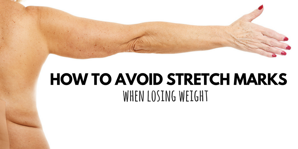 How To Avoid Stretch Marks When Losing Weight